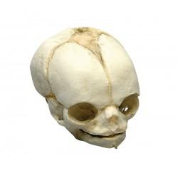 Modèle de crâne de foetus