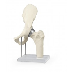 Articulation de la hanche...
