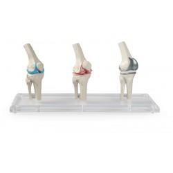 Modèle genou implant