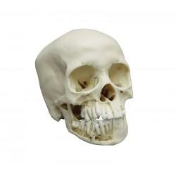Crâne adolescent de 12 ans
