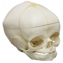 Crâne de fœtus 40 semaines avec coupe au calvaire