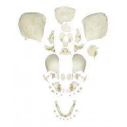 Crâne humain désarticulé