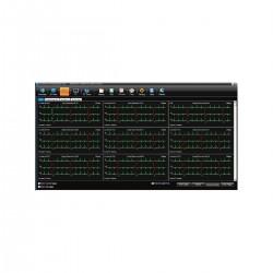 Edan logiciel SE-1515 gestion des données patients pour ECG